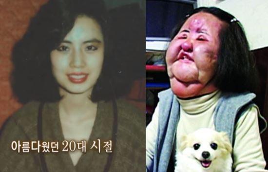 「電風扇阿姨」韓慧景57歲過世 愛美毀了她「9年無法閉眼」