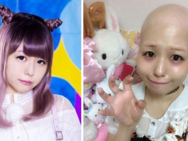 日本15歲女偶像pippi 患全身脫毛怪病脫假髮光頭示人