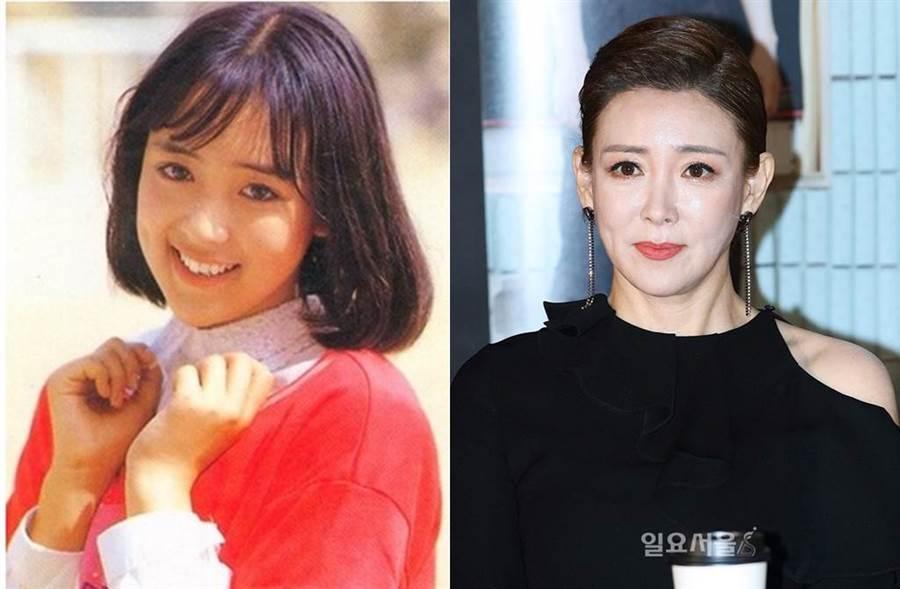 14歲被逼拍裸戲! 韓女星整型留後遺症⋯黑色深疤網嚇壞